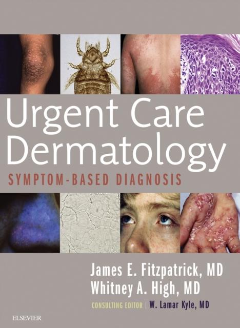 Urgent Care Dermatology: Symptom-Based Diagnosis E-Book